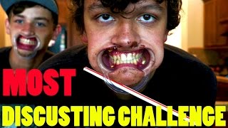 WORLDS MOST MESSY MOUTH GUARD CHALLENGE EVER!!!!