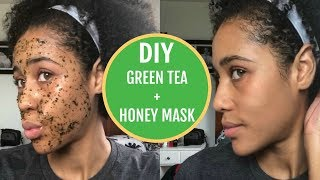 DIY Green Tea and Honey Mask For Acne | Get Glowing Skin