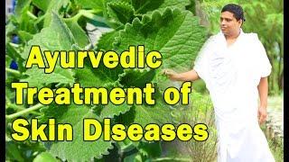 Ayurvedic Treatment of Skin Diseases Problems | Acharya balkrishna