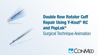 Double Row Rotator Cuff Repair Using Y-Knot® RC and PopLok® - ConMed Animation
