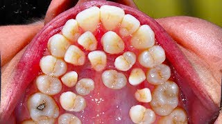 All My Teeeth!  Hyperdontia - Secrets to White Teeth!   😃😄😄😬