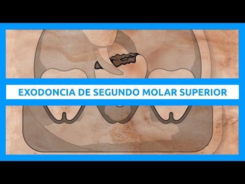 Exodoncia de segundo molar superior