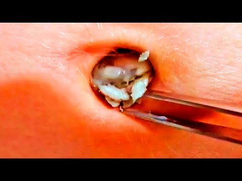 Xxx Mp4 Popping Navel Stones Belly Blackheads 3gp Sex