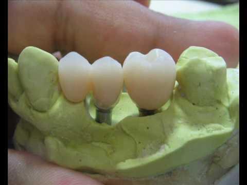 Provisorio sobre implante 2 Protese Dentaria