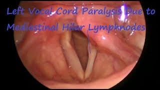 Laryngology : Left Vocal Cord Paralysis Due to Mediastinal Hilar Lymphnodes