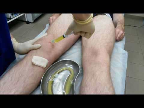 остеоартроз коленного сустава лечение видео