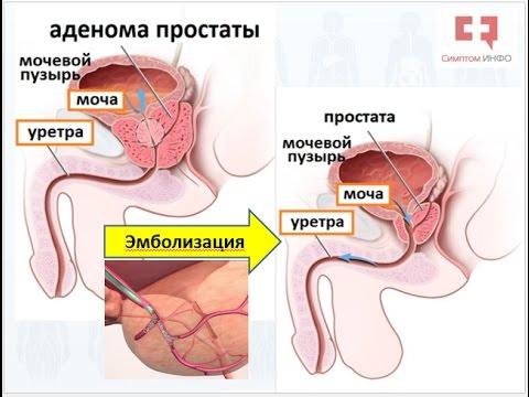Форум о лечений простатита