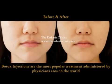Botox InjectionTreatment for Masseter Hypertrophy | How To Change Face Shape | Dr.  Debraj Shome