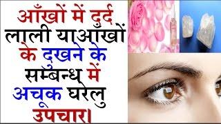 आँखों का दुखना/दर्द , गीड आना, आँखों में लाली का रामबाण उपचार।Aankho ke dard ka ilaj !Eye Pain