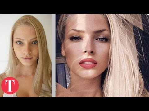 Download 10 Hot Instagram Stars Before Plastic Surgery On Musiku.PW