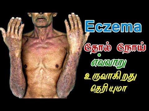 Xxx Mp4 கரப்பான் தோல் நோய் Eczema Karappan Thol Noi 3gp Sex