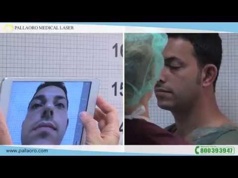 Rinoplastica Antonio ha rifatto il profilo del naso alla Pallaoro Medical