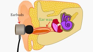 Putting  Earbuds In Your Ears Is VERY Bad And Here