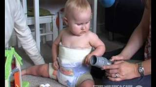 Hip Spica-Baby-Toddler-Cast-removal-Lily1.mp4