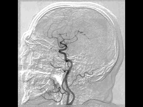 Carotid cavernous fistula angiogram
