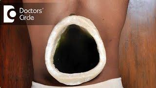 Ayurvedic treatment for Slip Disc - Dr. Prashanth S Acharya