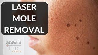 laser mole removal