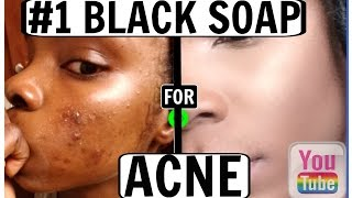 THE #1 BEST BLACK SOAP FOR ACNE!! (Before & After)  | Fair_rah♡