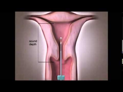 Spiral Nedir Spiral Nasıl Takılır Hormonlu Spiral Fiyatları Spiral Zararları Yan Etkileri Video