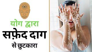 सफेद दाग का रामबाण इलाज   Yoga for Leucoderma in Hindi   Yoga with Amit