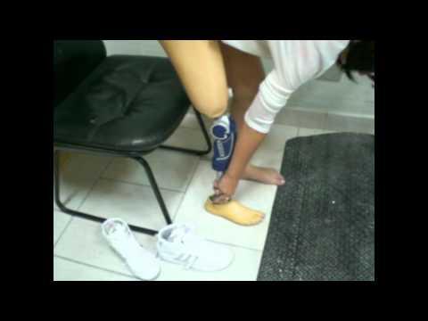 Prótese acima do joelho com regulagem de salto Ortopedia Americana