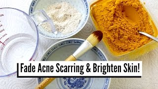 HOW TO FADE ACNE SCARRING With TURMERIC! Home Remedy For Acne & Oily Skin
