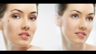 Get Rid of Moles Fast! (Face And Entire Body) Subliminals Frequencies Hypnosis -- Frequency Wizard