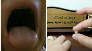 علاج رائحة الفم الكريهة عند الاستيقاظ من النوم