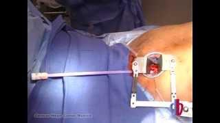 Alternative approaches for TAVI: TransAortic CoreValve implantation