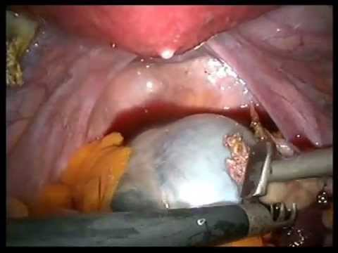 Laparoscopic keyhole surgery removal of an ovarian cyst and both ovaries and tubes