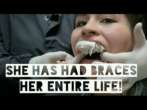 GETTING BRACES OFF AFTER 15 YEARS FULL EXPERIENCE