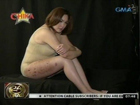 Xxx Mp4 24 Oras Claudine Barretto Ipinakita Ang Kanyang Mga Sugat Sa Hita 3gp Sex