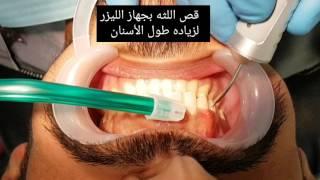 قص اللثه بجهاز الليزر لزياده طول الأسنان