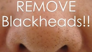 DIY how to REMOVE Blackheads Using an EGG!!