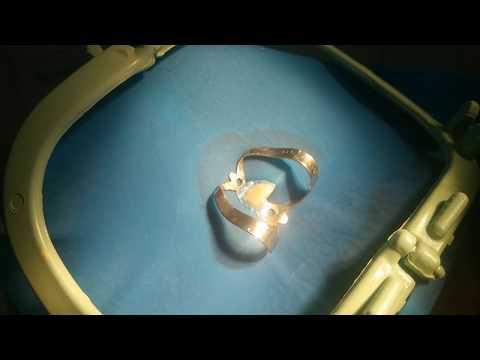Larvas e Vermes retirados de Dentes Miíase Oral ou Polpa dentária