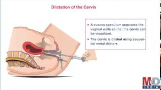 Dilatation and Curettage
