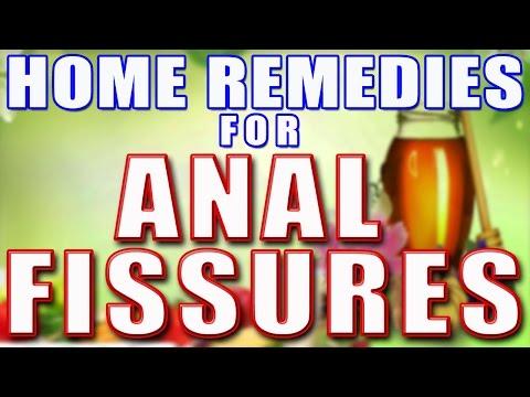 Home Remedies for Anal Fissures II गुदा में दरार के लिए घरेलु उपचार II