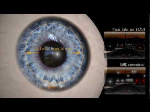 Cirugía Vista con Láser de Femtosegundo.