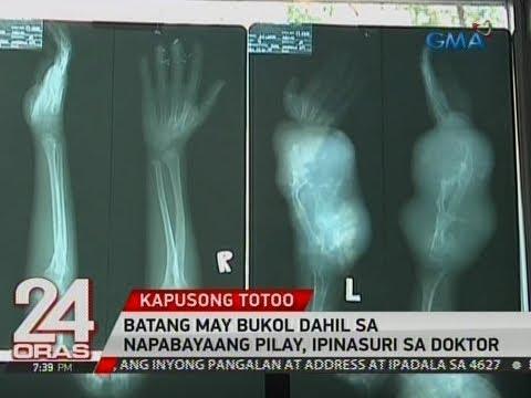 Xxx Mp4 24 Oras Batang May Bukol Dahil Sa Napabayaang Pilay Ipinasuri Sa Doktor 3gp Sex