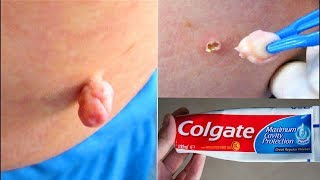 REMOVE SKIN TAG IN 1 NIGHT OF APPLYING TOOTHPASTE | Home Remedies To Remove Skin Tags Easily