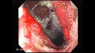 Video de Cáncer de Estómago