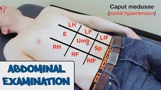 Abdominal Examination - OSCE Guide (New Version)