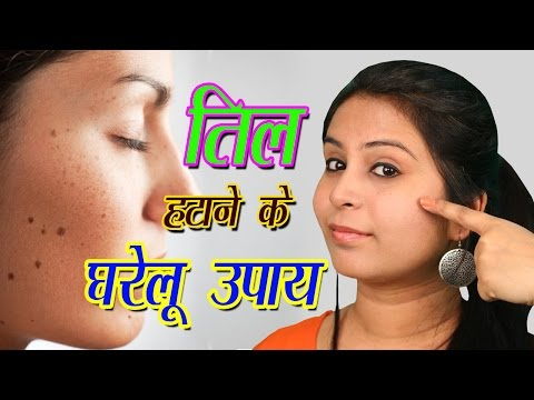 Home Remedies For Warts Removal तिल हटाने के घरेलू उपाय | How To Remove Warts Naturally From Face