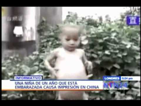 En China una niña de un año de edad está embarazada NTN24