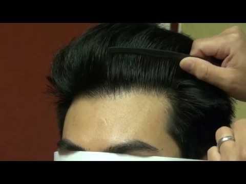 Excellent FUE Hairline Lowering Hair Transplant Restoration Surgery Result Diep www.mhtaclinic.com