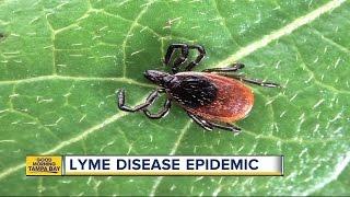 Doctors predict Lyme Disease epidemic; Tampa Bay possible hotbed of debilitating tick-born disease