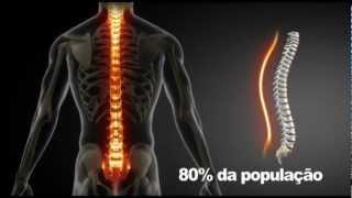 Hérnia de Disco l Conheça o Tratamento sem cirurgia para Hérnia de Disco