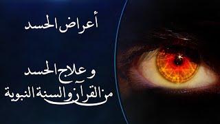 أبرز أعراض العين والحسد