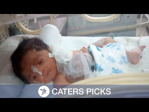 Pakistani Baby Born With Heart Outside Chest