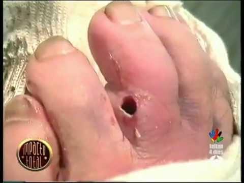 Gusano en el dedo del pie